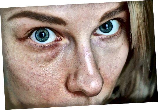 اگر بعد از استفاده از محصولات خاص دچار قرمزی یا حتی بثورات و خارش پوست شدید ، به احتمال زیاد پوست حساسی دارید.