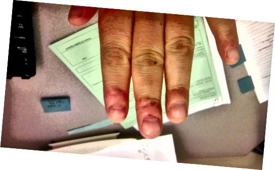 Červené, syrové, hrbolaté, hrbolaté, ouchie, příšerné nehty a prsty! Po zastavení to bylo více než týden. Léčení prstů trvá dlouho.