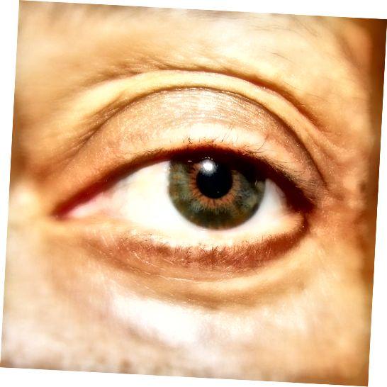 Autorovo přirozené oko. Začal jsem ztrácet řasy kvůli nemoci. Opravdu jsem potřeboval nějakou pomoc, protože běžná řasenka neudělala nic.