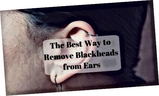 अपने कानों से ब्लैकहेड्स को खत्म करने के लिए एक कम दर्दनाक विधि जानें।