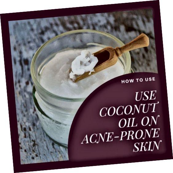 नारियल तेल बे पर मुँहासे रखने के लिए बहुत अच्छा है। यह अंतर्निहित त्वचा के ऊतकों को मजबूत करने में भी मदद करता है और मृत कोशिकाओं को हटाता है जिससे त्वचा शुष्क और परतदार दिखाई देती है।
