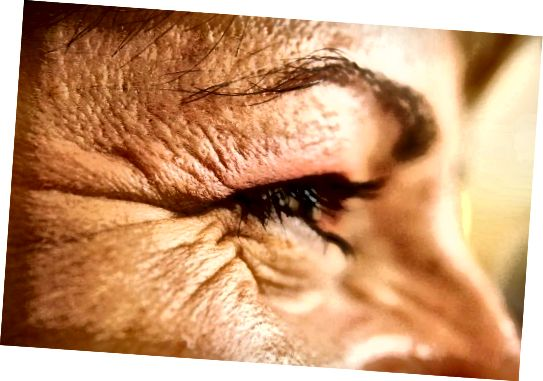 თვალის ნაოჭები, რომლებიც აშკარად ჯერ არ არის მკურნალობა გლიცერინით.