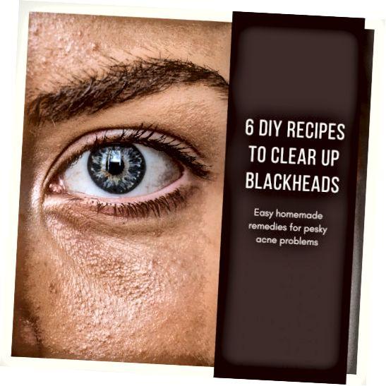 Այս հոդվածը կտա վեց տարբեր մեթոդներ ձեր ծակոտիները բացելու և այդ սևամորթները մաքրելու համար: