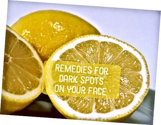 یک ماسک آب لیمو ساده (با یا بدون عسل) می تواند به لکه های تیره کمک کند.