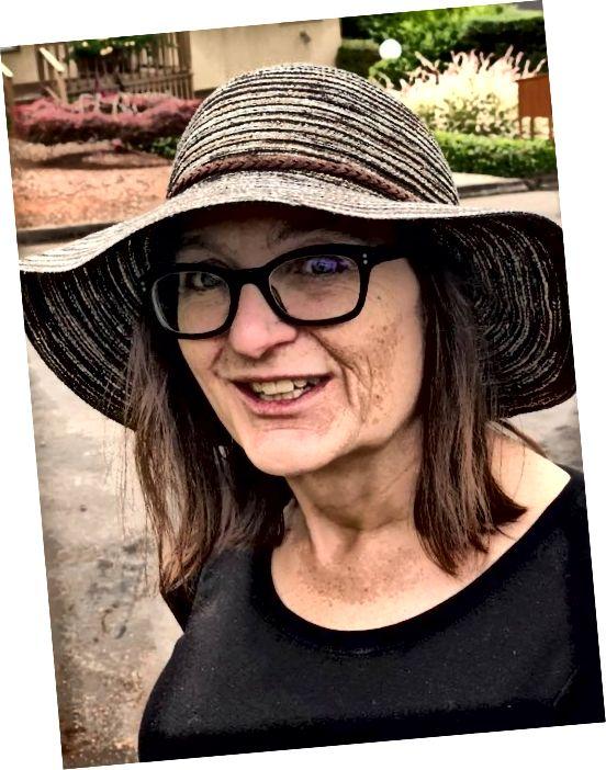 Γεια, όχι πολύ κακό για το 51! Έχω ρυτίδες, αλλά η συνολική υγεία του δέρματος μου τις καθιστά λιγότερο αισθητές. Να φοράτε πάντα καπέλο!