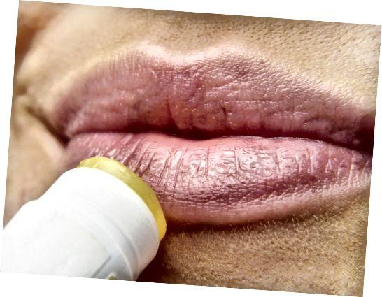 Τα βάλσαμα στα χείλη διατηρούν την υγρασία κλειδωμένη, αλλά δεν ενυδατώνονται.