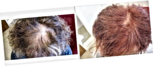 Barvanje las vam lahko pomaga skriti izpadanje las.