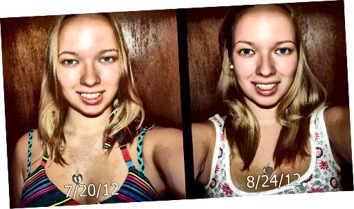 رشد مو با استفاده از ویتامین های بیوتین.