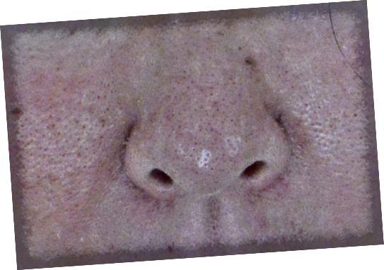 Η Cosmelan δεν συρρικνώθηκε τους μεγάλους πόρους μου, αλλά η υφή του δέρματος μου βελτιώθηκε. Η υπερχρωματισμός είναι καλύτερη, όχι τέλεια