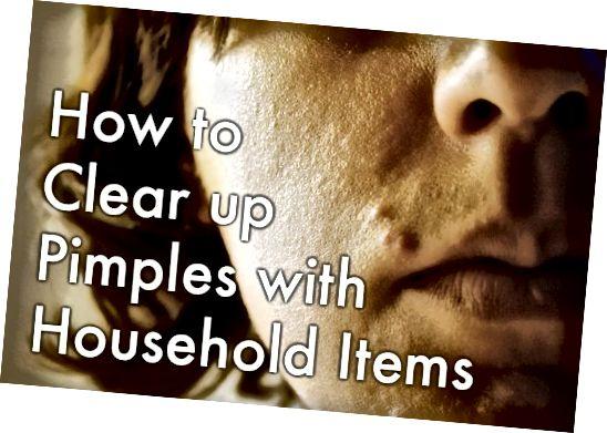 घरेलू वस्तुओं के साथ पिंपल्स का इलाज और रोकथाम कैसे करें।