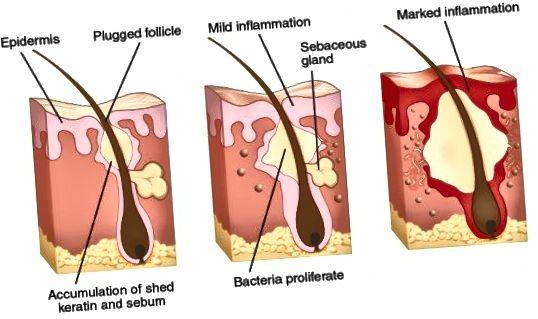 Ako vidíte, je to spôsob, akým naše telo reaguje a snaží sa zahnať póry upchatia, ktoré spôsobuje zápal, začervenanie a opuch. Jemným čistením spôsobíte menšie podráždenie postihnutej oblasti.