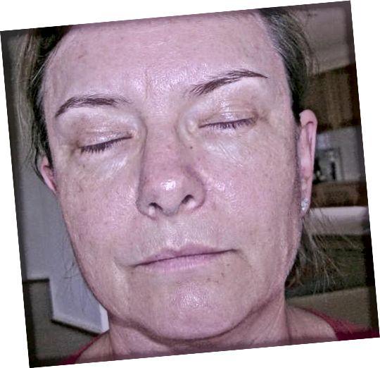 Κατάσταση του δέρματος μετά τη χρήση του Baiden Mitten για δύο μήνες και μία εβδομάδα.
