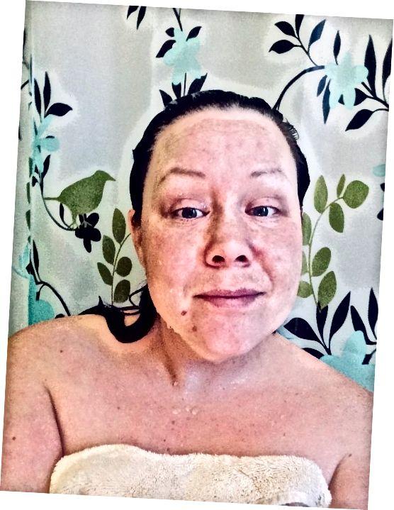 सूखे पेट पॅट करने के लिए तैयार ताजा, मैं देख सकता था कि सूखी त्वचा से मेरे थोड़े से बदरंग क्षेत्रों को पहले से ही सुधार दिया गया था!