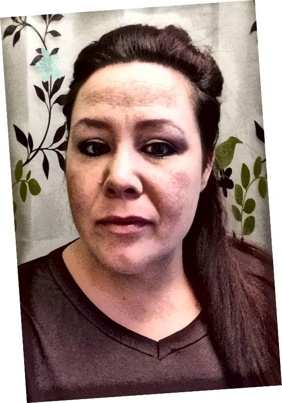 Λίγες μέρες αργότερα το δέρμα μου φαίνεται ακόμα υπέροχο και η ακμή και τα σπυράκια είναι υπό έλεγχο. Το μόνο μακιγιάζ που έχω είναι το lip gloss, η σκιά ματιών, το eyeliner και το brow liner. Δεν χρειάζονται καλύψεις ή ιδρύματα. Οι μόνοι άνισοι τόνοι δέρματος τώρα είναι οι φακίδες μου.
