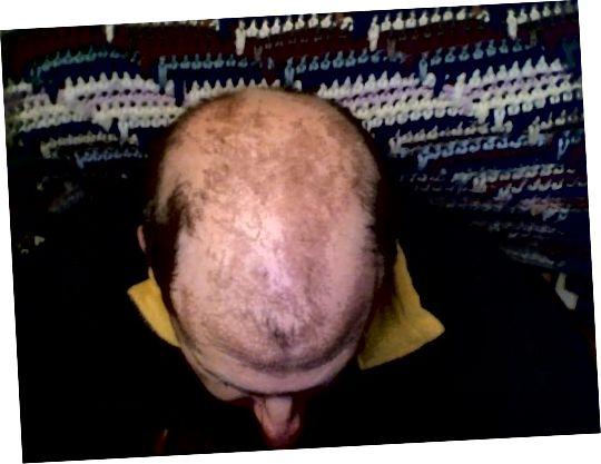 Mężczyźni radzą sobie z wypadaniem włosów częściej niż kobiety.