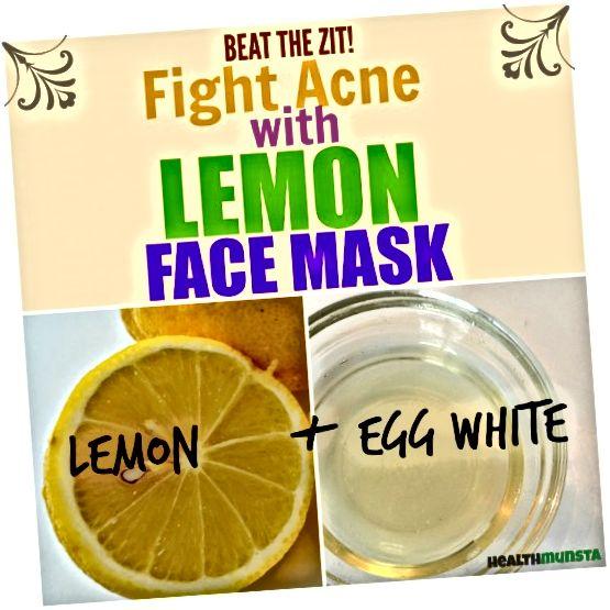 Kwas cytrynowy w soku z cytryny może pomóc pokonać trądzik. Wypróbuj tę prostą, bezsensowną maseczkę cytrynową, aby pozbyć się zits.
