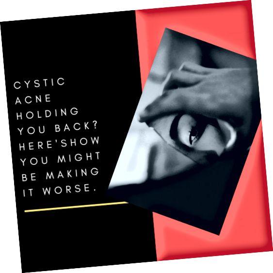 Nenechte se cystickou akné držet zpátky. Zde je několik tipů, jak můžete snížit jeho dopad.