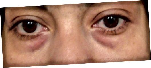 У вас темні кола під очима?