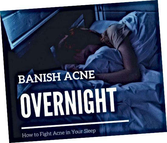 อ่านเพื่อเรียนรู้วิธีกำจัดสิวที่น่ารำคาญในการนอนของคุณ!