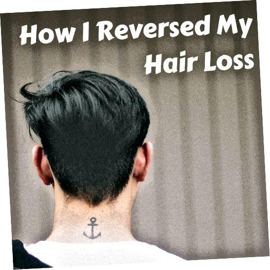 Comecei a perder meu cabelo em uma idade jovem. Felizmente, com algumas pesquisas, fui capaz de identificar as causas do meu problema e revertê-lo com algumas mudanças significativas no estilo de vida.