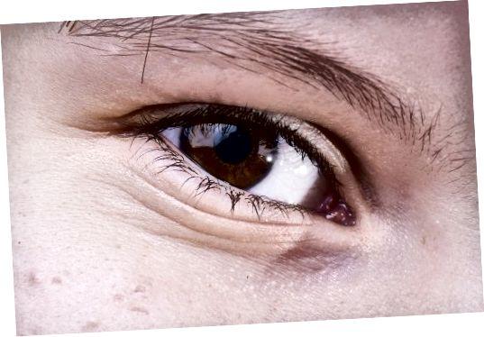 مراقبت از چشم در مورد مراقبت های پیشگیرانه از پوست مهم است!