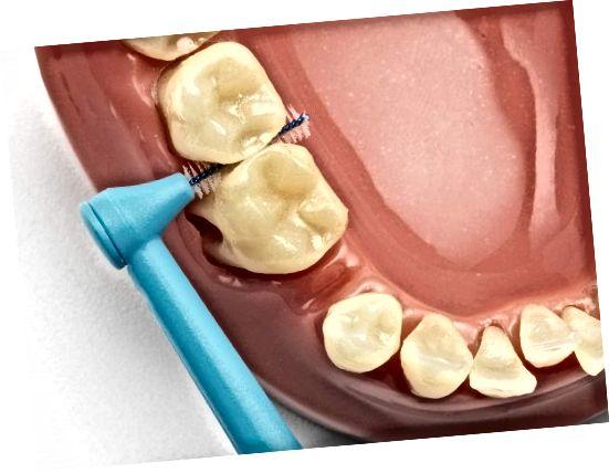 یک قلم مو بین دندانی قادر به درگیری بین دندان های شما است. برس کوچک سیم پلاک محکم را که حتی یک مسواک برقی نمی تواند به آن برسد ، از بین می برد.