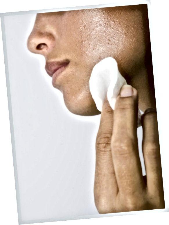 اگر آکنه دارید ، به آرامی صورت خود را درمان کنید و از لمس آن با انگشتان خودداری کنید