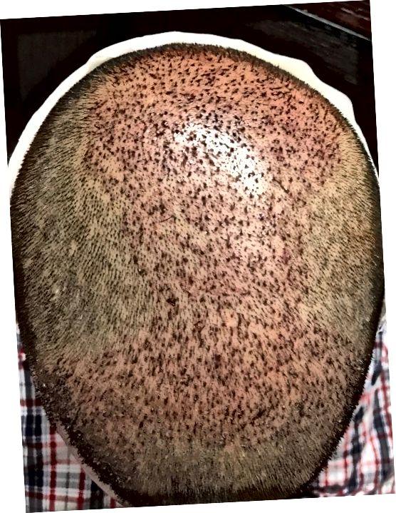 Takto bude vypadat vaše pokožka hlavy 2. den, pokud budete postupovat podle pokynů lékaře