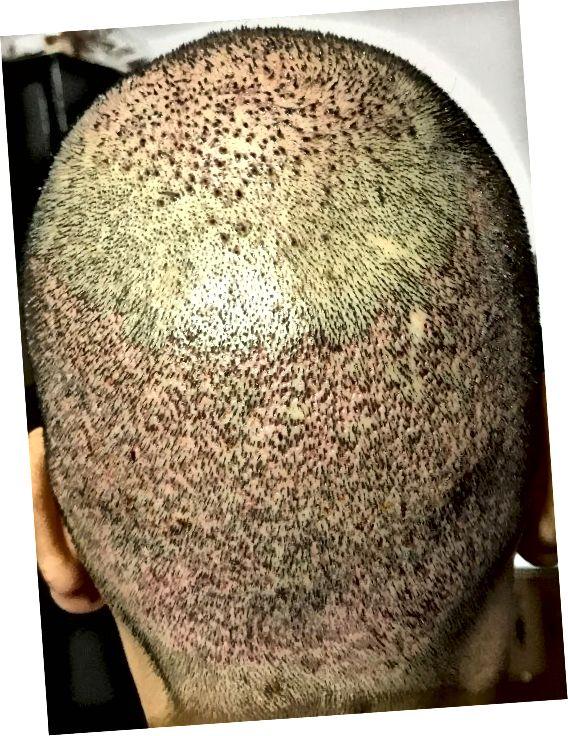 Takto bude vypadat zadní strana hlavy, jakmile bude náplast odstraněna. Jak vidíte, vypadá to načervenale a měl by vypadat lépe s postupem dnů