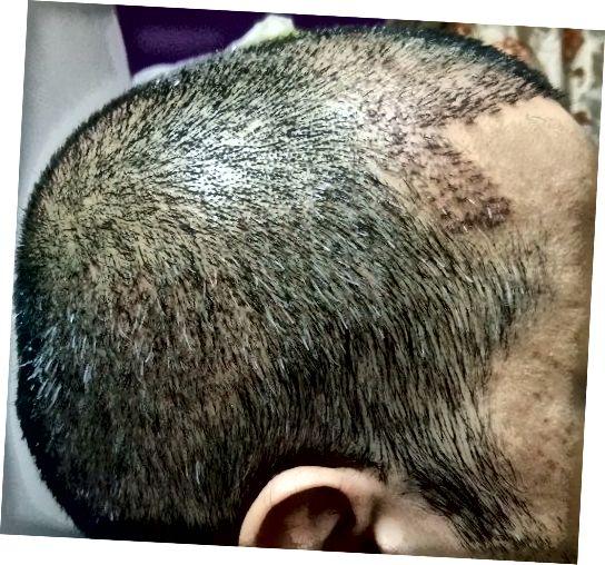 Boční pohled - po správném šamponu (téměř všechny krusty odešly)