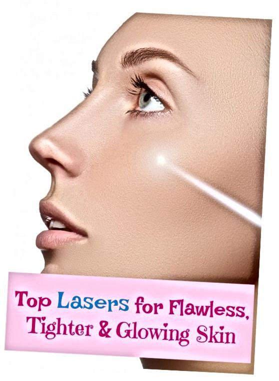 Najlepsze lasery do podnoszenia, napinania i ujędrniania skóry