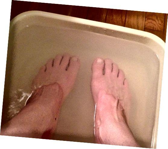 شستن و خیساندن پاهای شما به آماده سازی آنها برای پوست کمک می کند.
