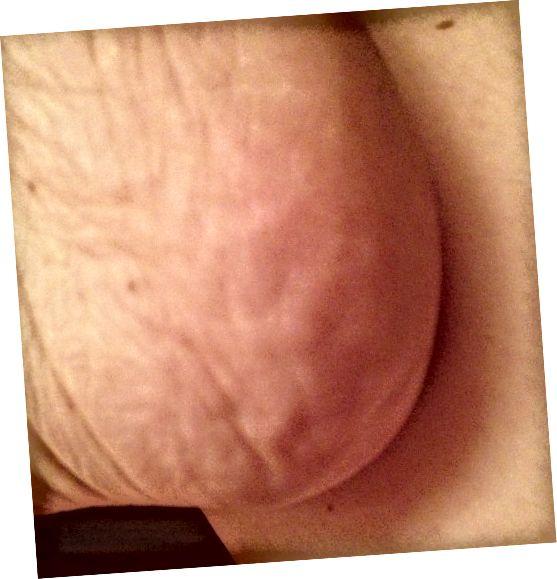 پوستی نرم و صاف بعد از معالجه کودک پا بهبود می یابد.
