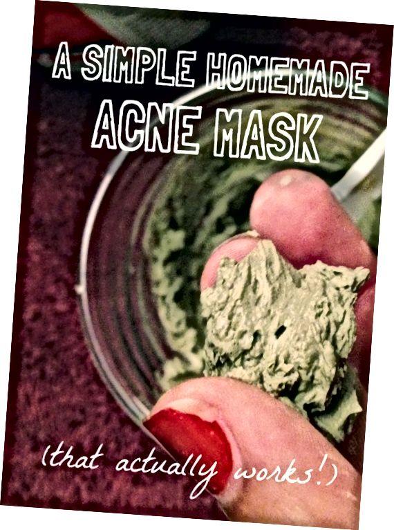 Проста домашня маска від вугрів (що насправді працює!)