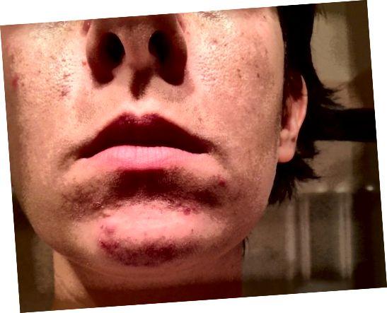 Акне на бради често су узроковане хормонским флуктуацијама.
