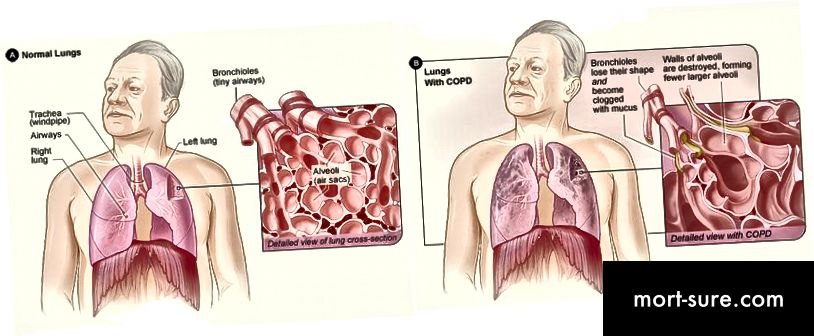 Copd_2010Side