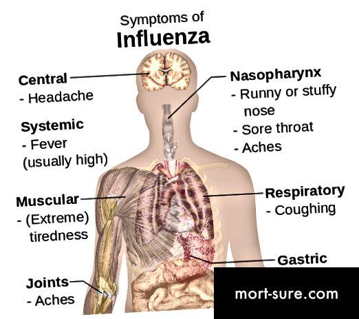 الفرق بين الانفلونزا وحشرة المعدة