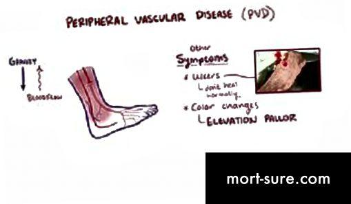المفاهيم غير المبررة التي تميز تفسير أمراض الأوعية الدموية الطرفية (PVD) وأمراض الشرايين الطرفية (PAD).