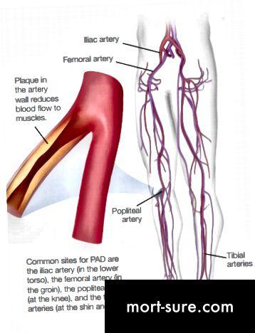 تميز التفسيرات لأمراض الأوعية الدموية الطرفية (PVD) وأمراض الشرايين الطرفية (PAD)