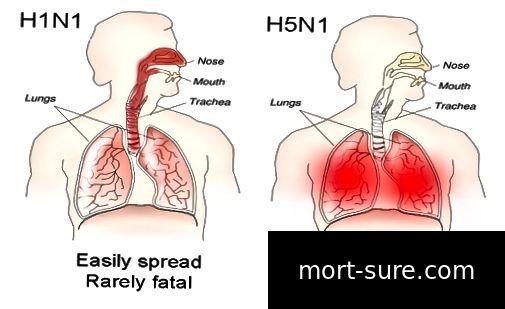 640px-H1N1_versus_H5N1_pathology