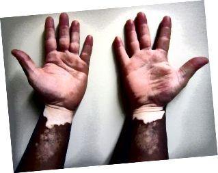 Unterschied zwischen Albinismus und Vitiligo