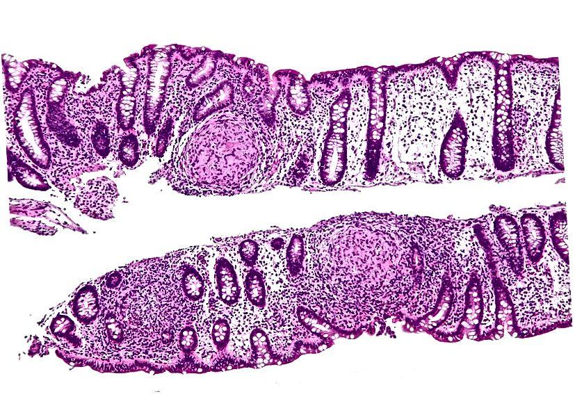 الفرق الرئيسي - سيلياك ضد مرض كرون