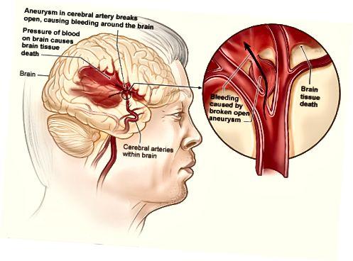 Atšķirība starp asiņošanu un hematomu