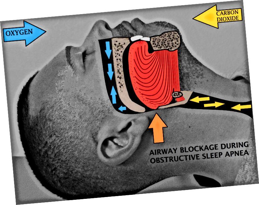 ההבדל בין דום נשימה לדיספנע