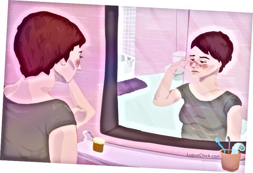 Der Lupus-Schmetterlingsausschlag beginnt am Nasenrücken und breitet sich über die Wangen aus. LupusChick.com/Michelle Smith, Praktikantin.