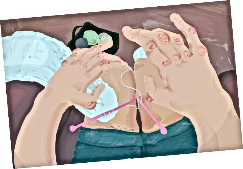 Hævelse og smerter i led og muskler er almindelig forekomst for nogen med lupus. LupusChick.com/Michelle Smith, praktikant