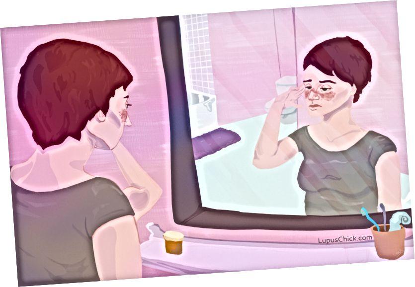 """Lupus """"sommerfugl"""" udslæt begynder ved næsebroen og spreder sig over kinderne. LupusChick.com/Michelle Smith, praktikant."""