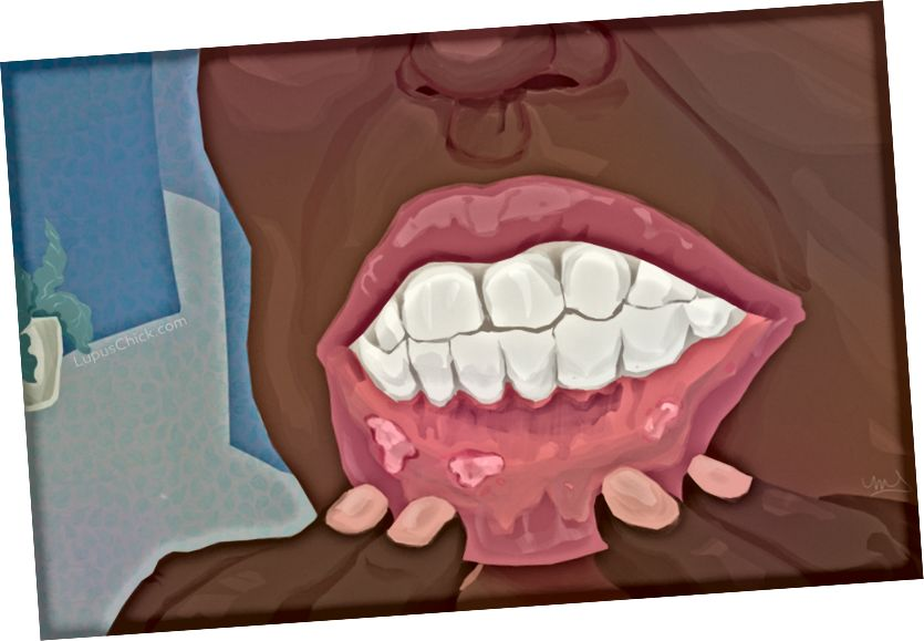 Unbequeme und manchmal schmerzhafte Mund- und Nasenschmerzen sind eine Realität für Menschen, die mit Lupus leben. LupusChick.com/Michelle Smith, Praktikantin.