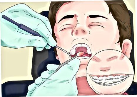 Ortodontistga tashrif buyurish