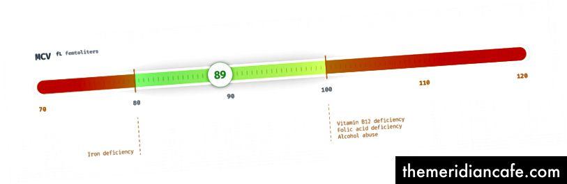 Níveis de MCV em femtolitros